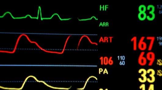 اندازه گیری ضربان قلب